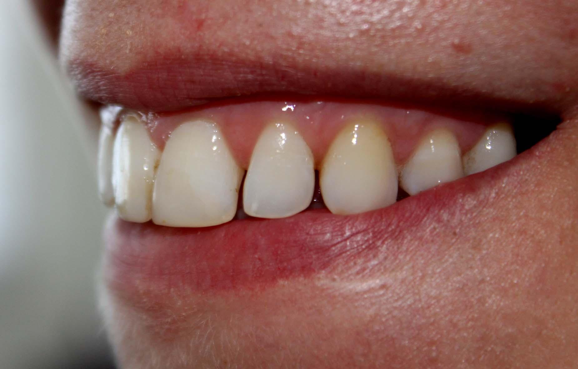 ULTERIORE seguito alla domanda: Il dentista ha fatto un buon lavoro a livello estetico, ma ha completamente sbagliato il colore della ricostruzione in