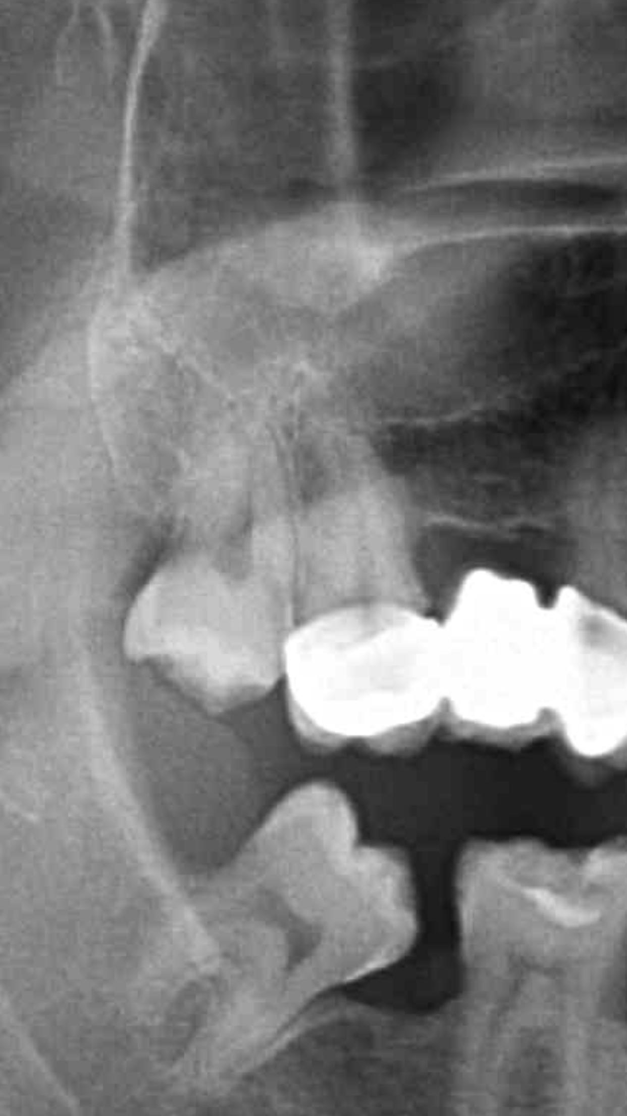 Da qualche giorno avverto un dolore acuto al molare monconizzato