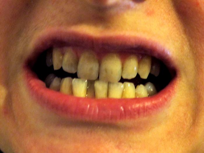 Perchè mi si macchiano i denti così velocemente?