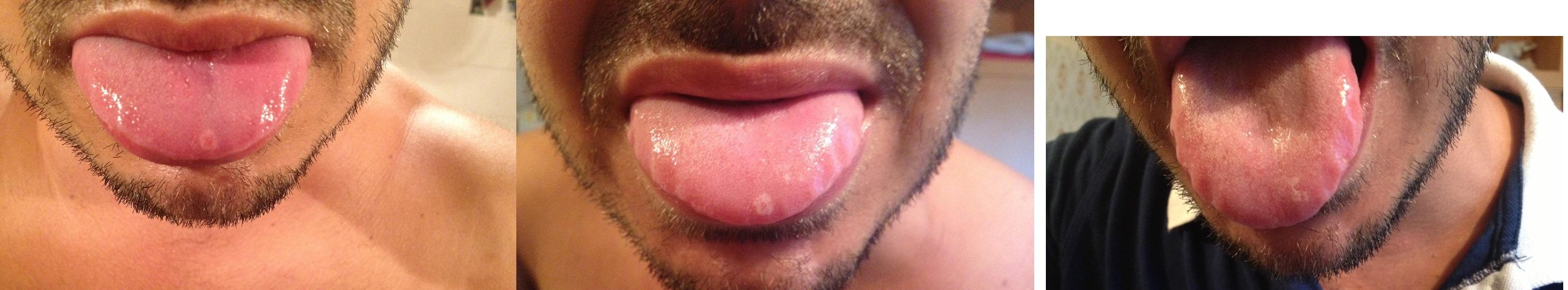 Ho delle chiazze sulla lingua che non mi danno tregua....