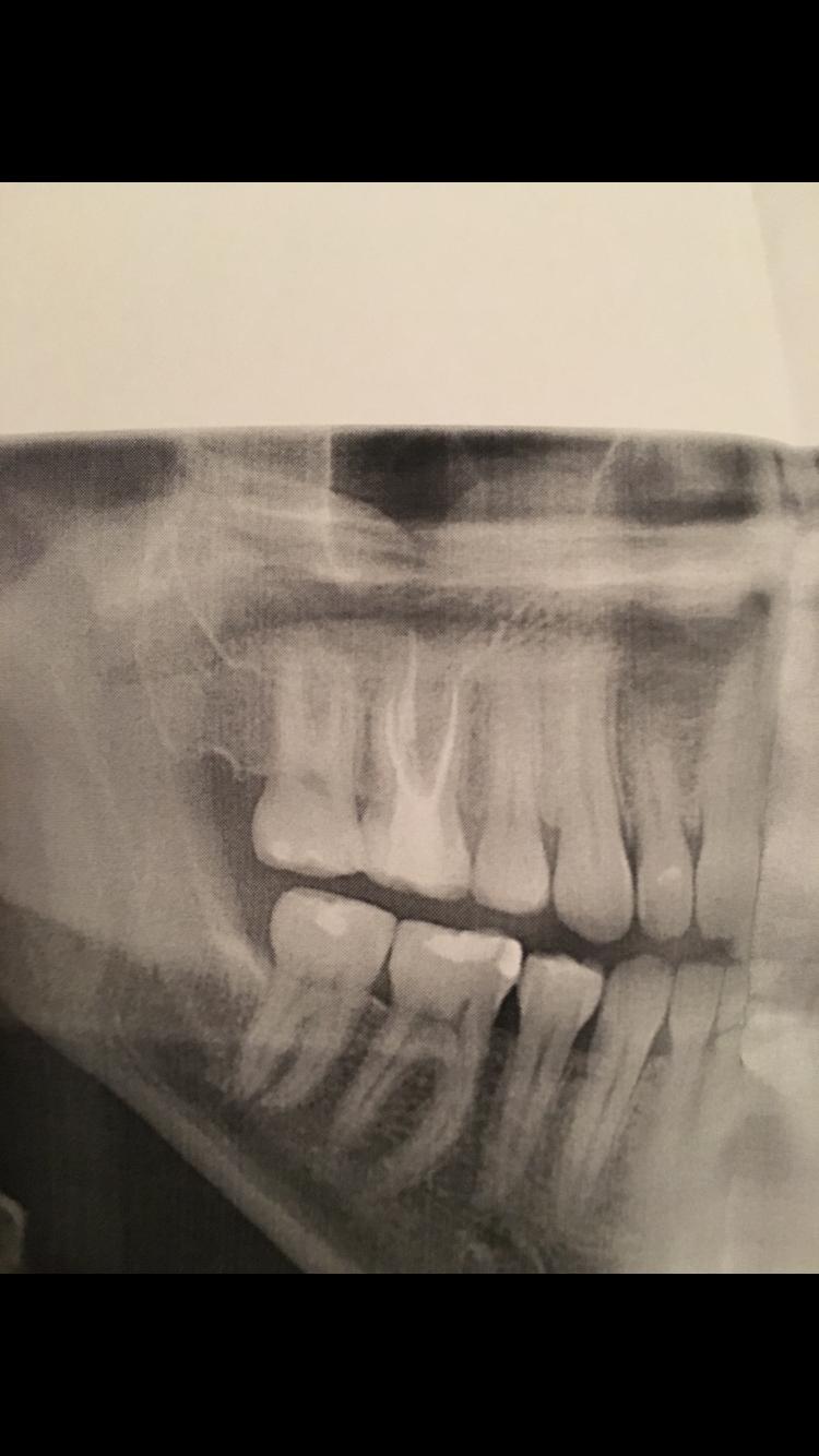 Circa due mesi fa ho devitalizzato un molare superiore