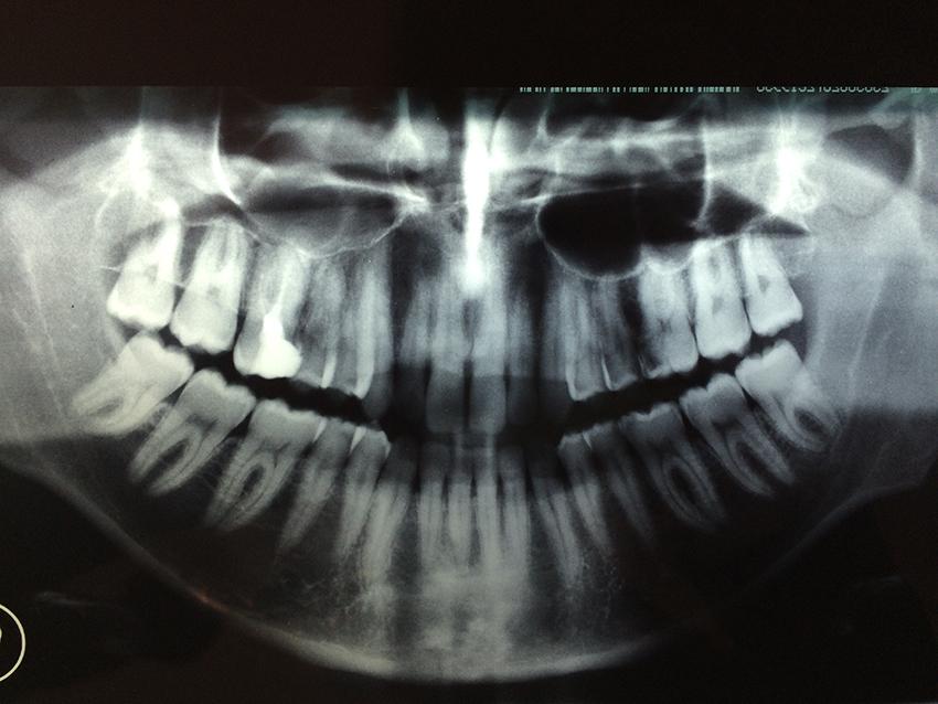 Da alcuni giorni sto accusando dei dolori ad un dente che avevo devitalizzato circa un anno fa