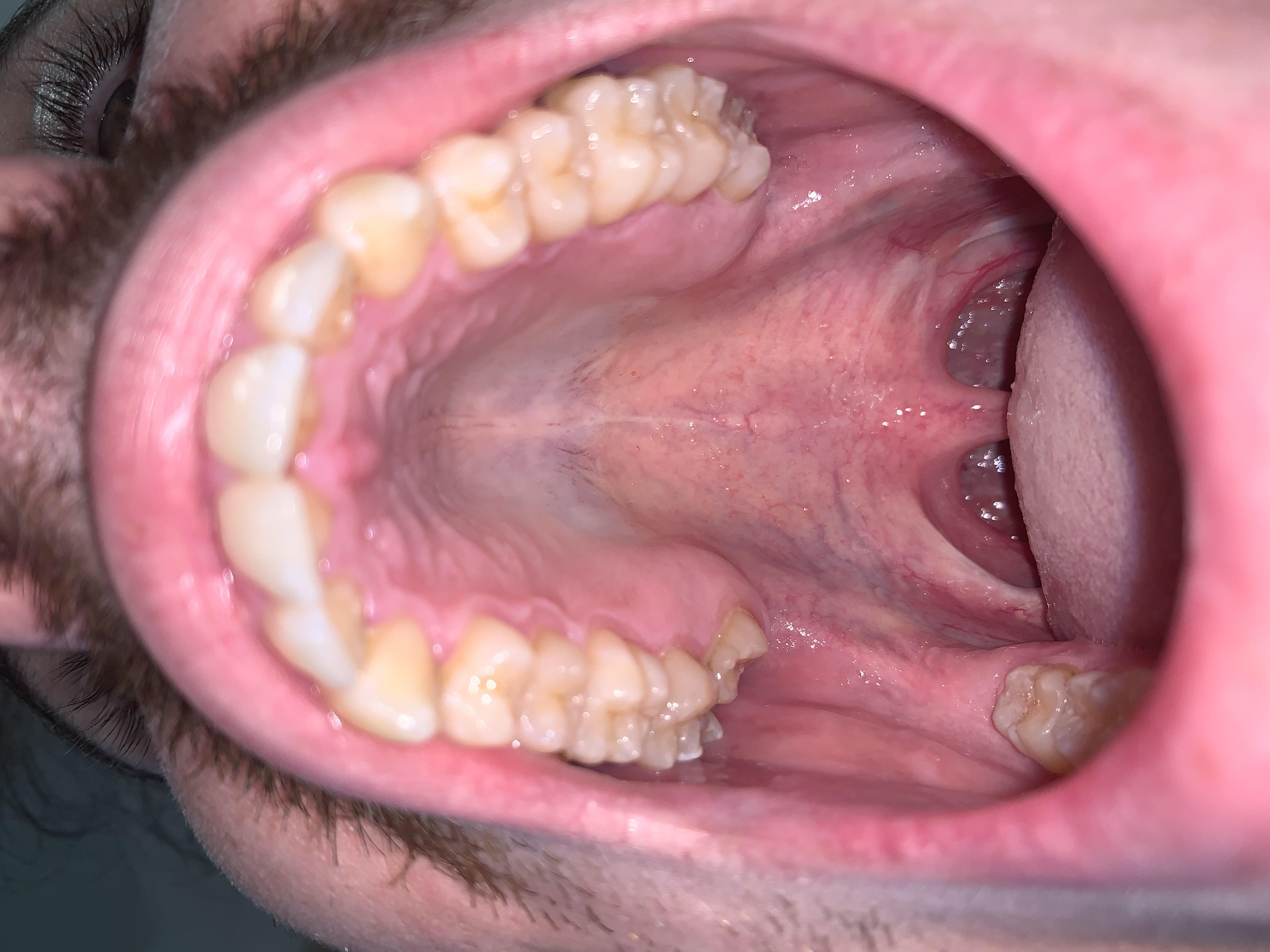 Il mio dente del giudizio superiore è cresciuto sopra il 6 molare