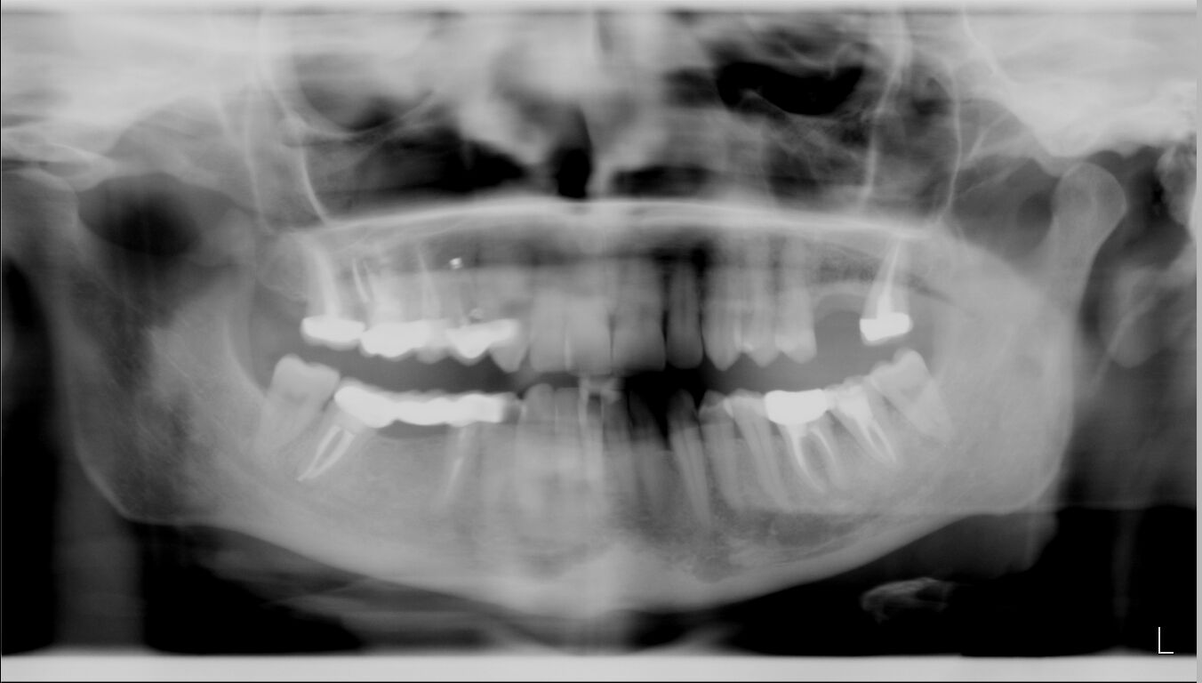 Ho scosse ai denti
