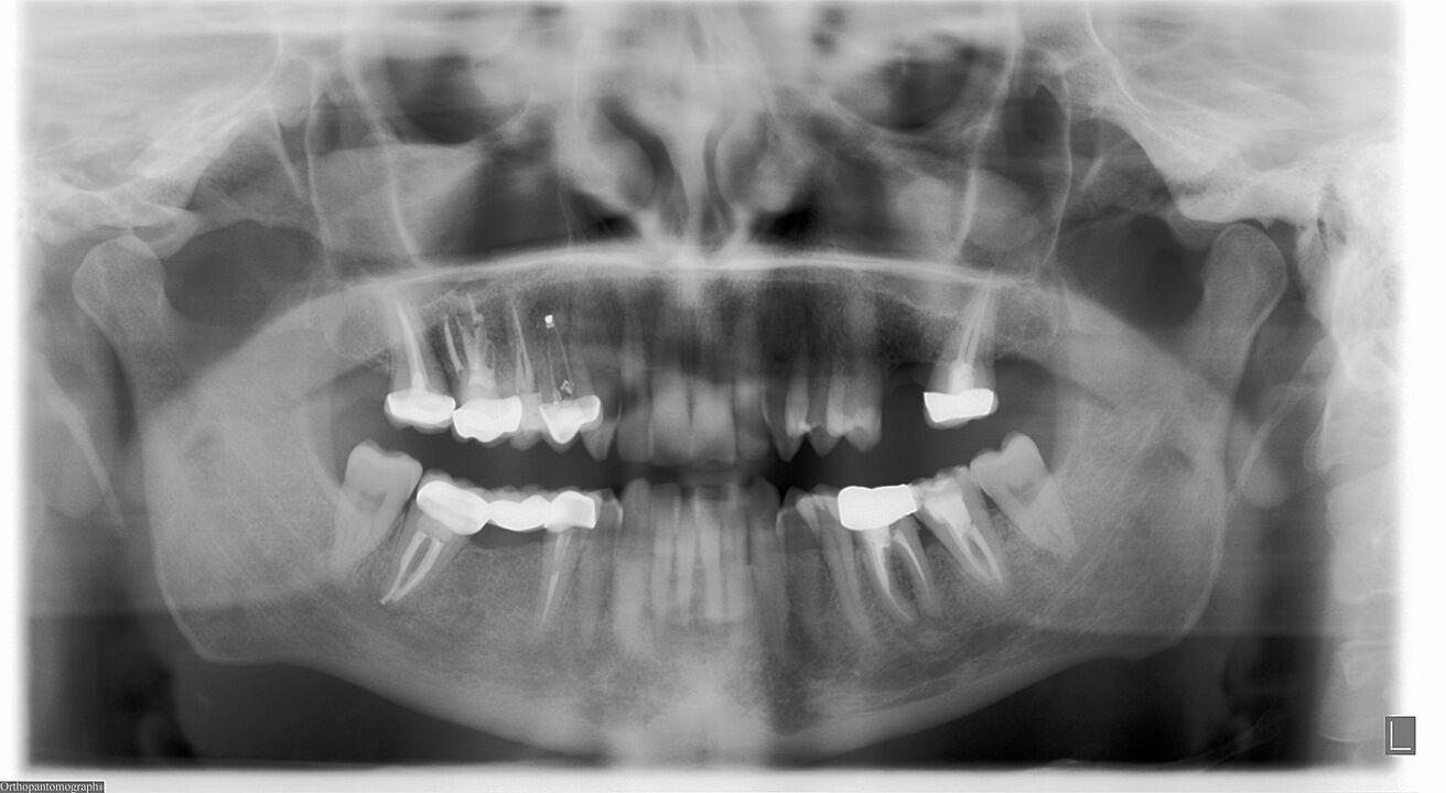 SEGUITO ALLA DOMANDA : Ho scosse ai denti