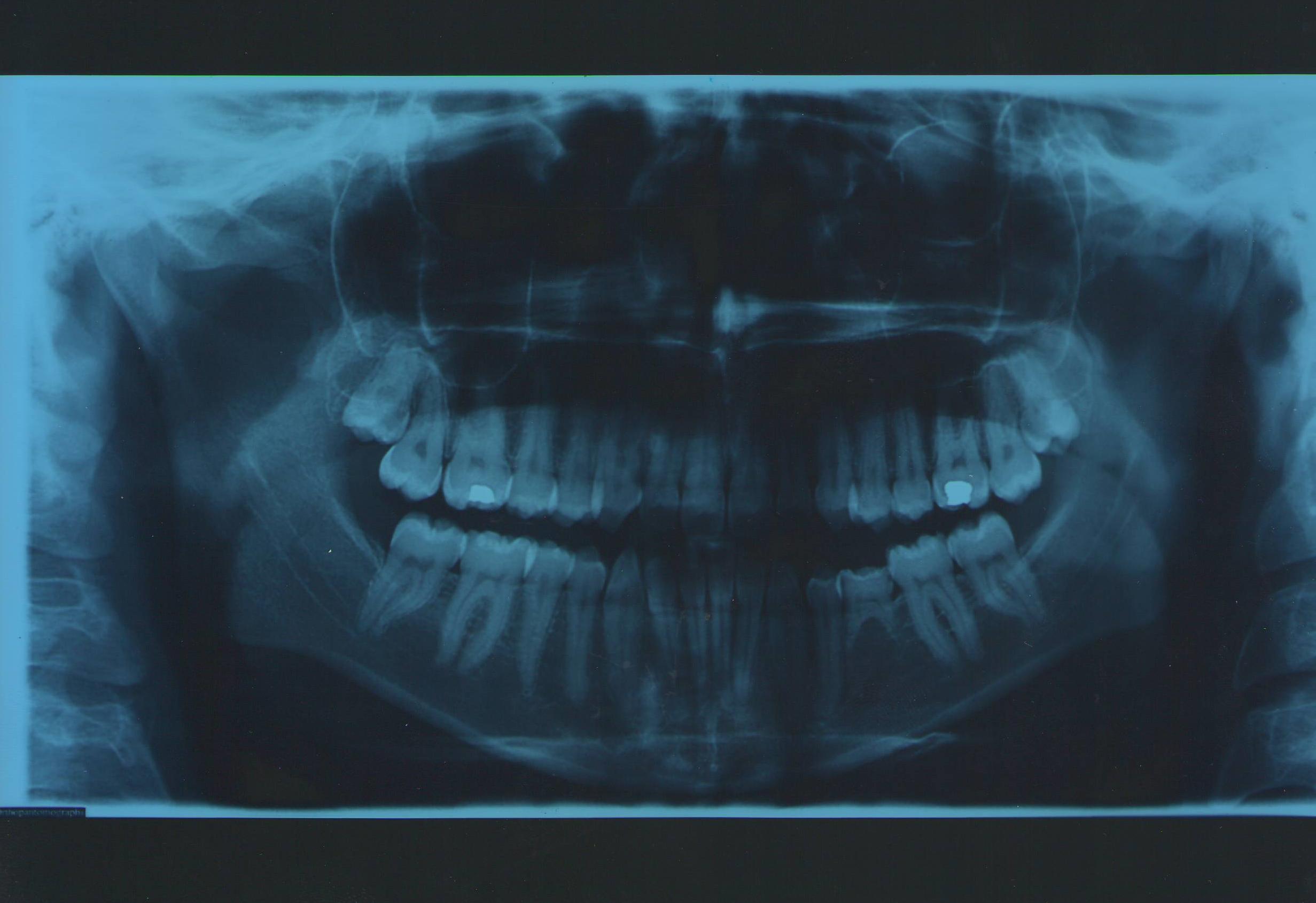 Ho 24 anni e ho una terza classe scheletrica compensata con asimmetria della mandibola