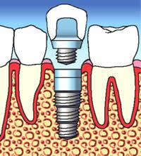 implantation-3.jpg