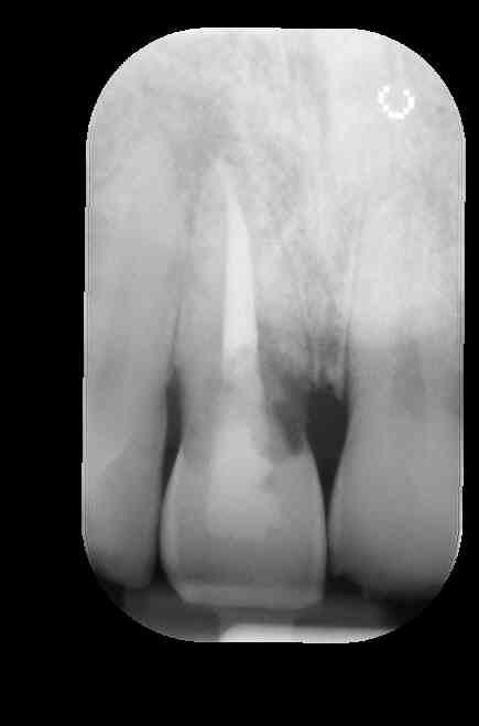 L'unica alternativa è l'estrazione del dente e la sostituzione con uno artificiale?