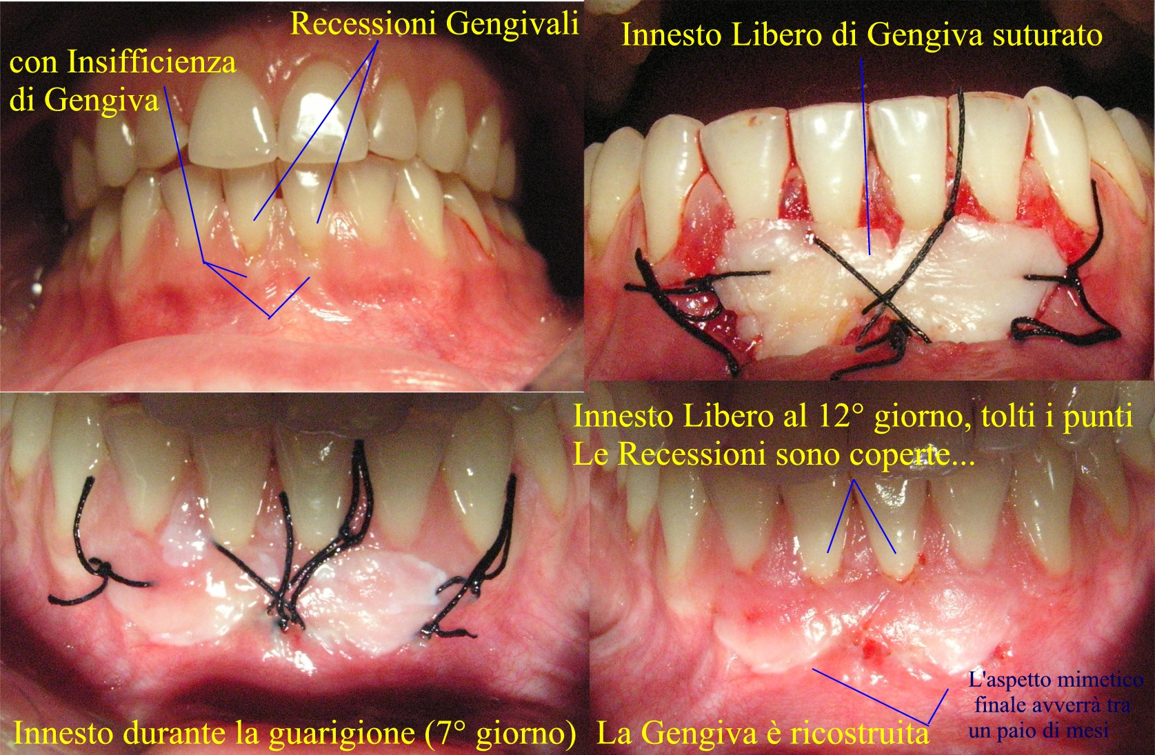 innesto-l.-di-gengiva-dr.petti-parodont.ca8.jpg