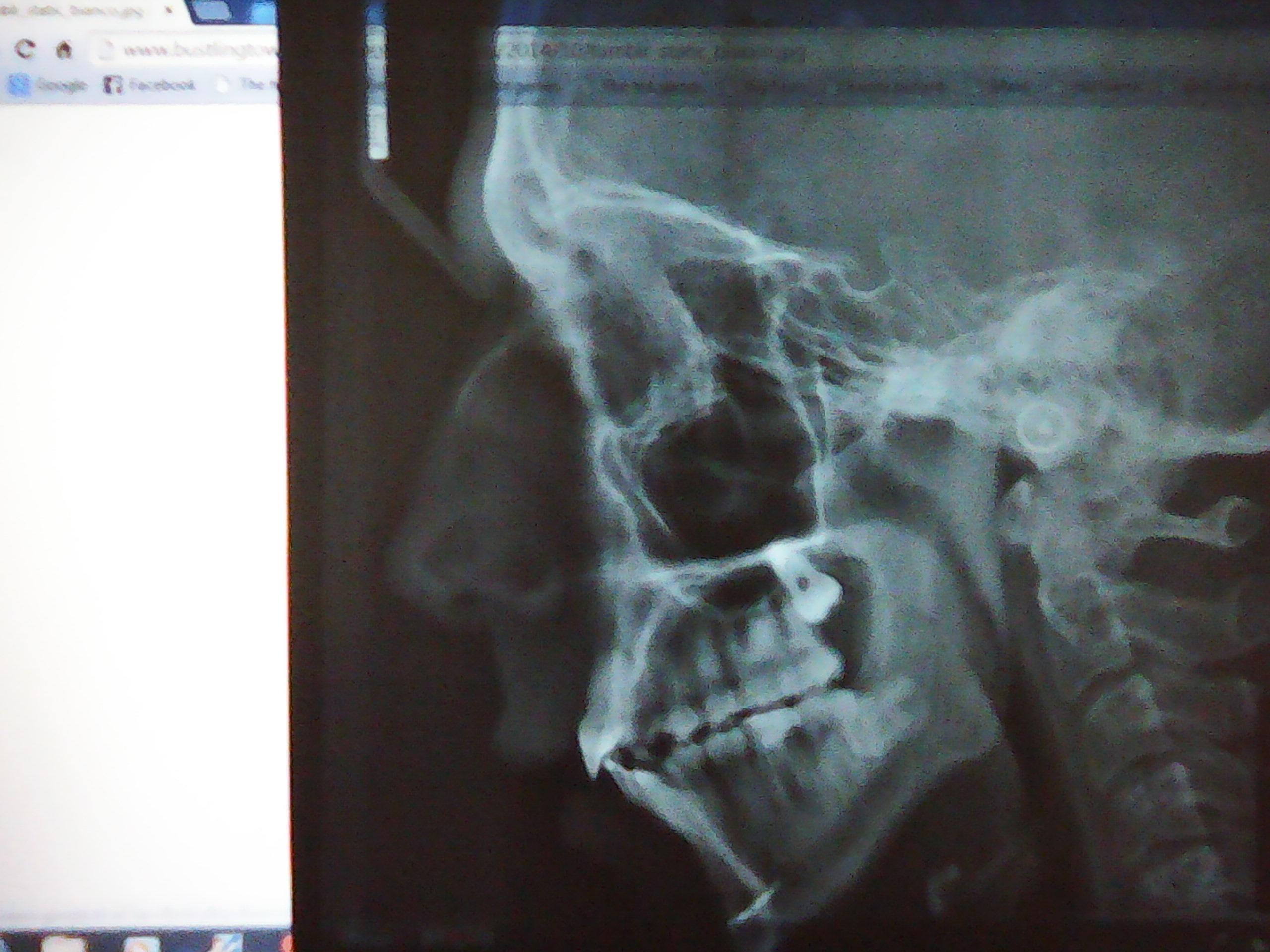 E' necessario un trattamento ortodontico?