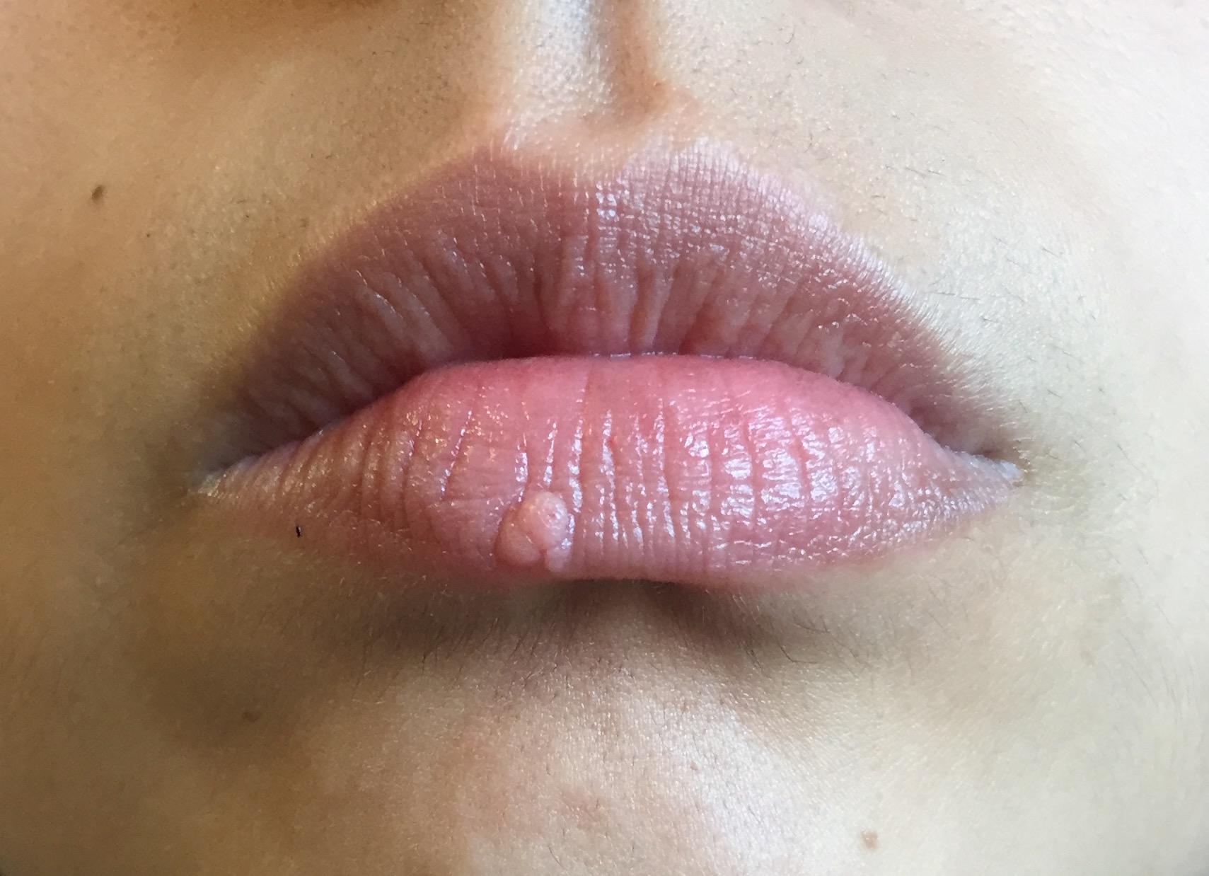 Papilloma labbro inferiore, Hpv labbro inferiore