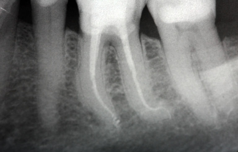 Mobilità dentale ai premolari e molare inferiori.