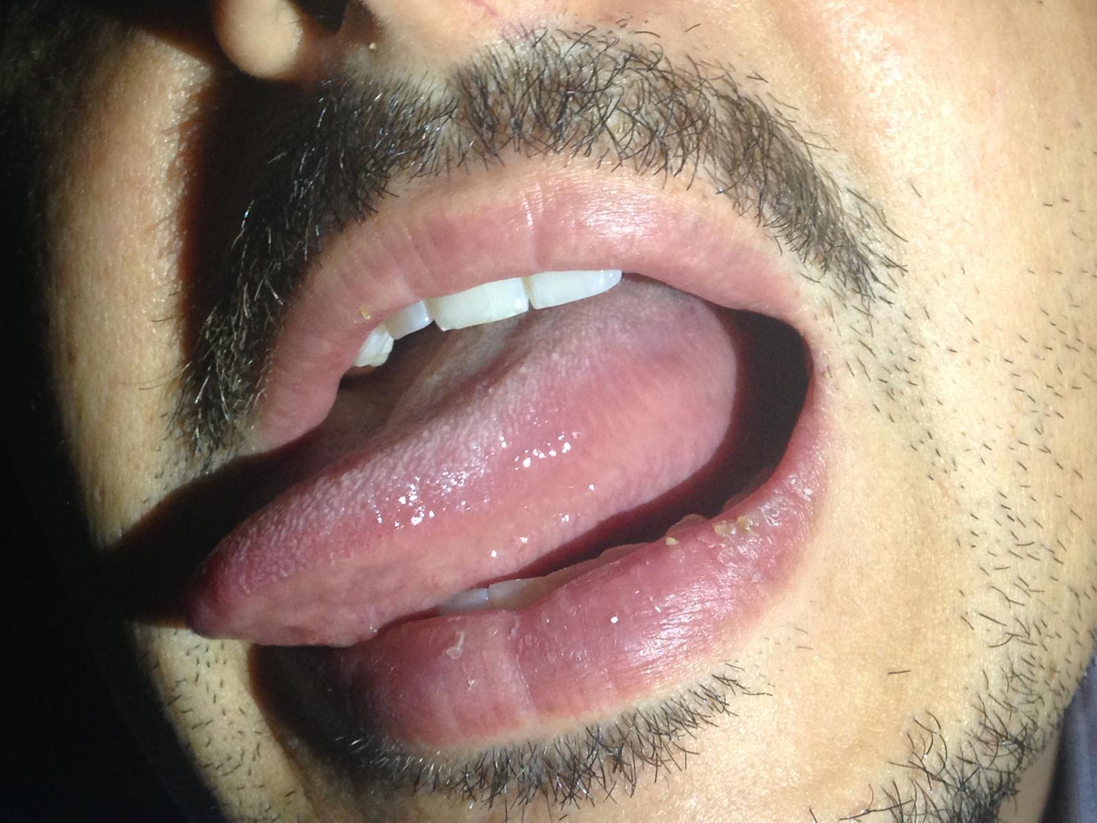 Ho notato un piccolo gonfiore nella parte laterale della lingua