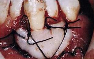 Innesto libero di Gengiva al momento della sutura. Da casistica del Dr. Gustavo Petti Parodontologo di Cagliari