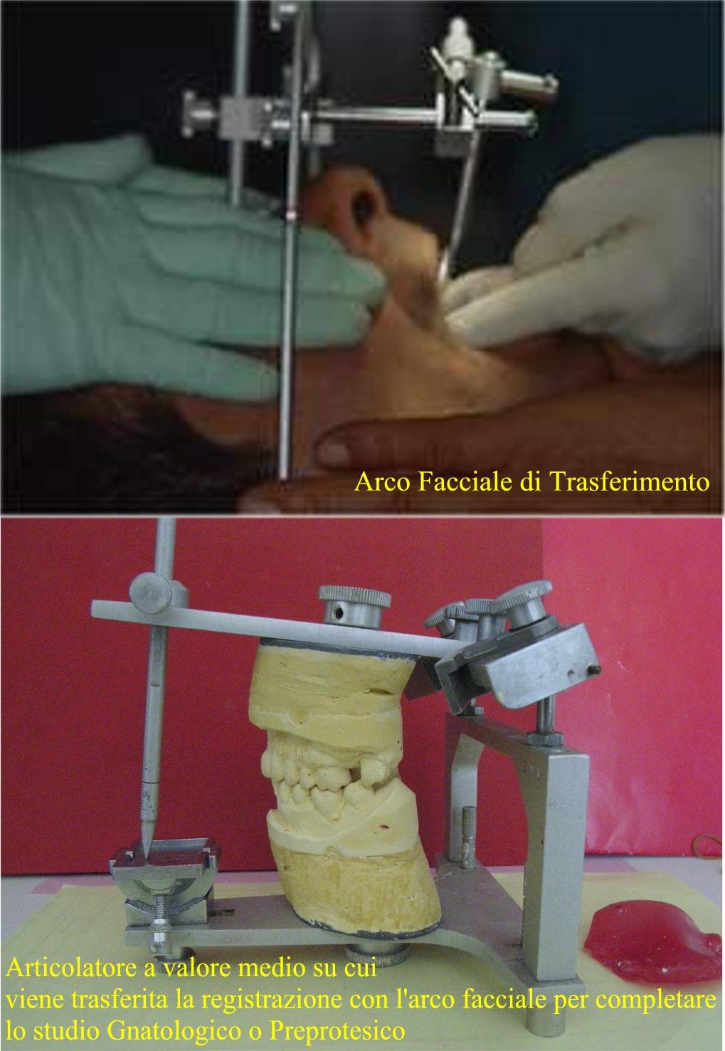 Arco di trasferimento e articolatore a valore medio tra i tanti strumenti per lo studio Gnatologico. Da casistica del Dottor Gustavo Petti Gnatologo Parodontologo di Cagliari