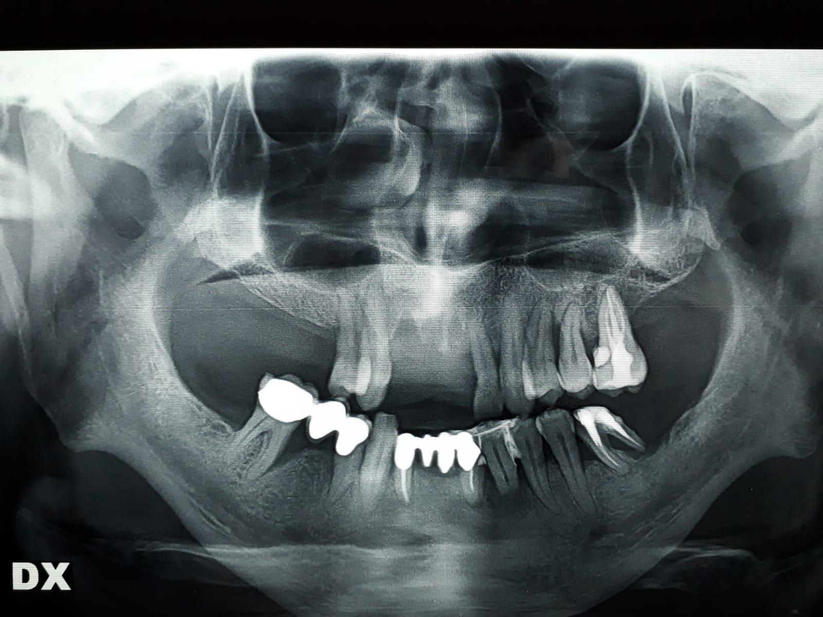 Ho perso diversi denti negli ultimi anni per parodontite