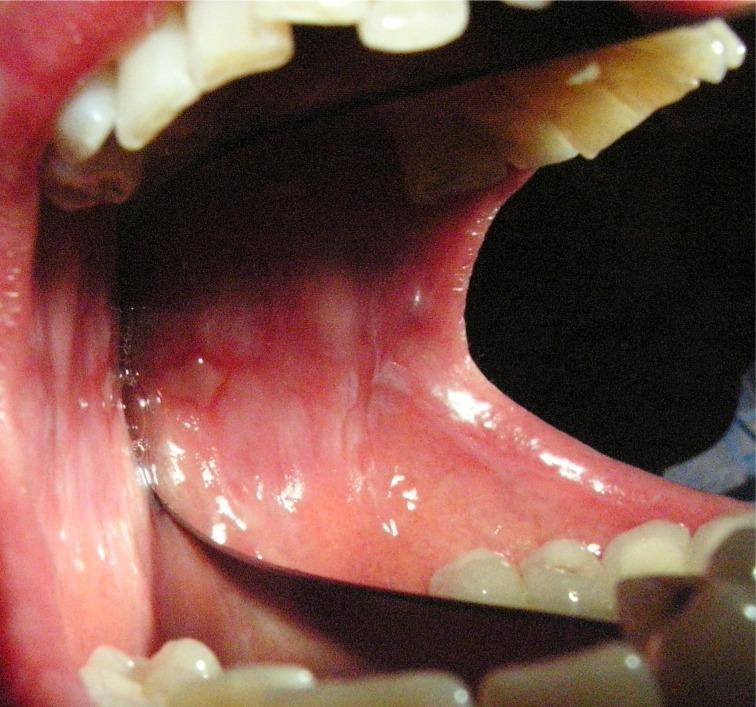 Lichen Ruber Planus Pemfigoide che era iniziato semplicemente con  lesioni aftiformi. Da casistica stomatologica del Dr. Gustavo Petti di Cagliari