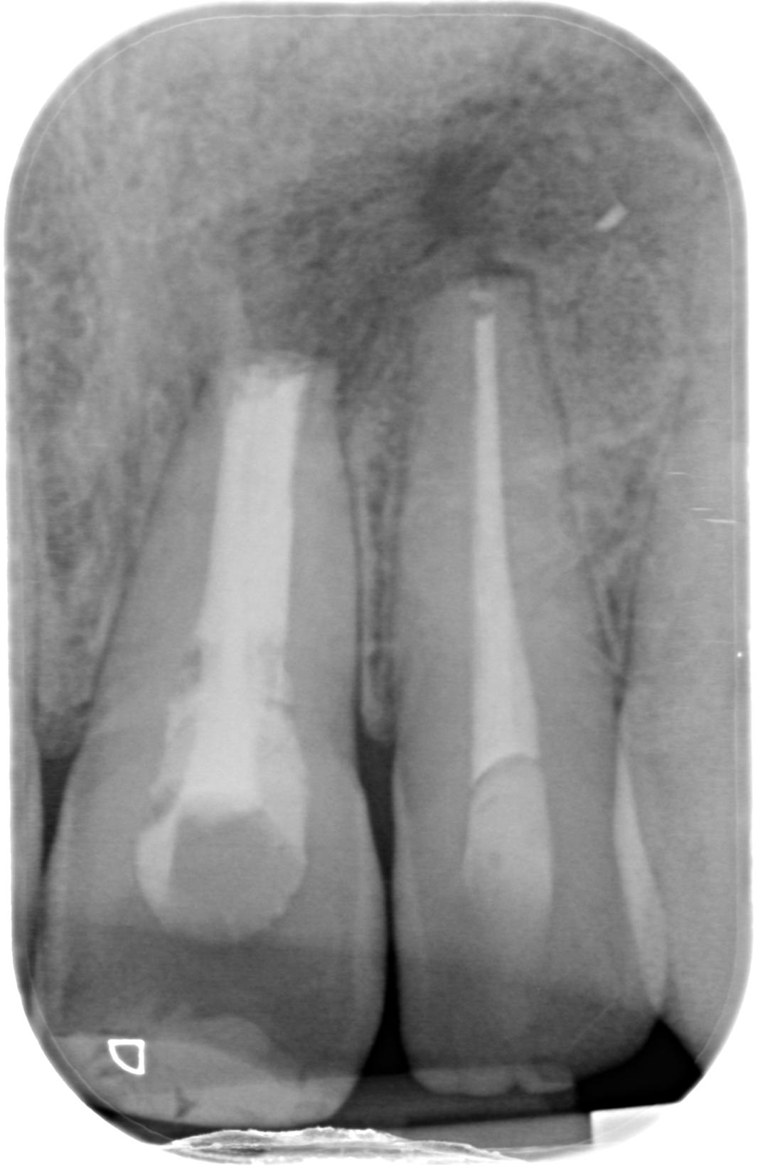 La percentuale d'osso formatasi fa ben sperare per una possibile guarigione?