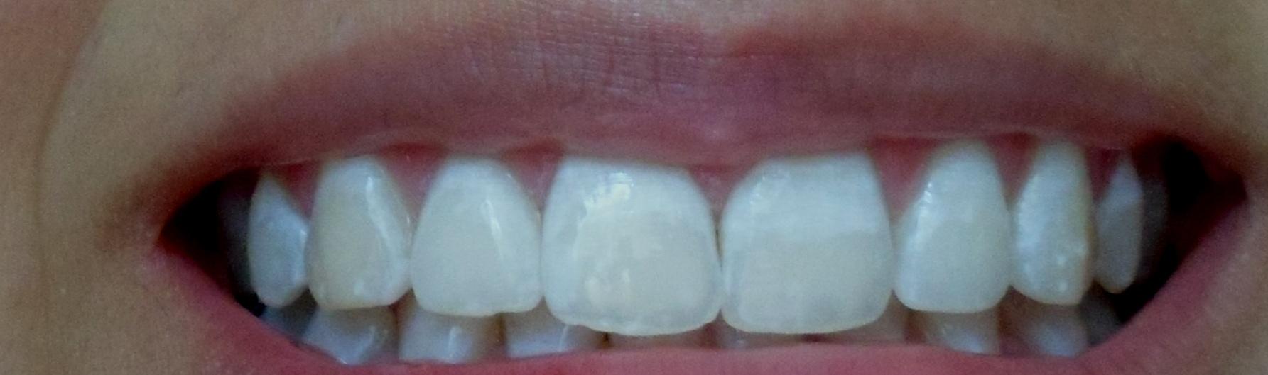 E' normale che dopo 24 ore i miei denti siano così?
