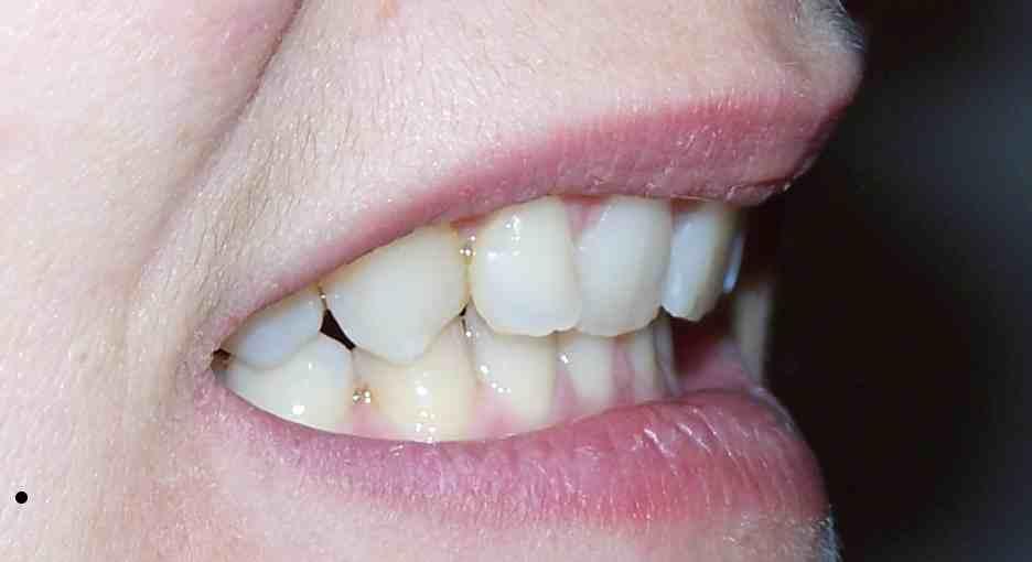 Problemi post cura con apparecchio ortodontico