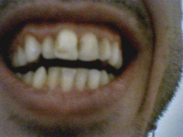 Ho 40 anni e vorrei ricorrere ad un apparecchio fisso per correggere l'allineamento dei denti,