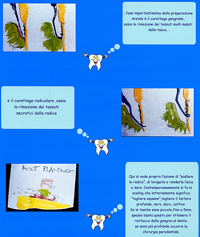 Curettage e Scaling e Root Planing. Da casistica Parodontale del Dr. Gustavo Petti e Dr.ssa Claudia Petti di Cagliari