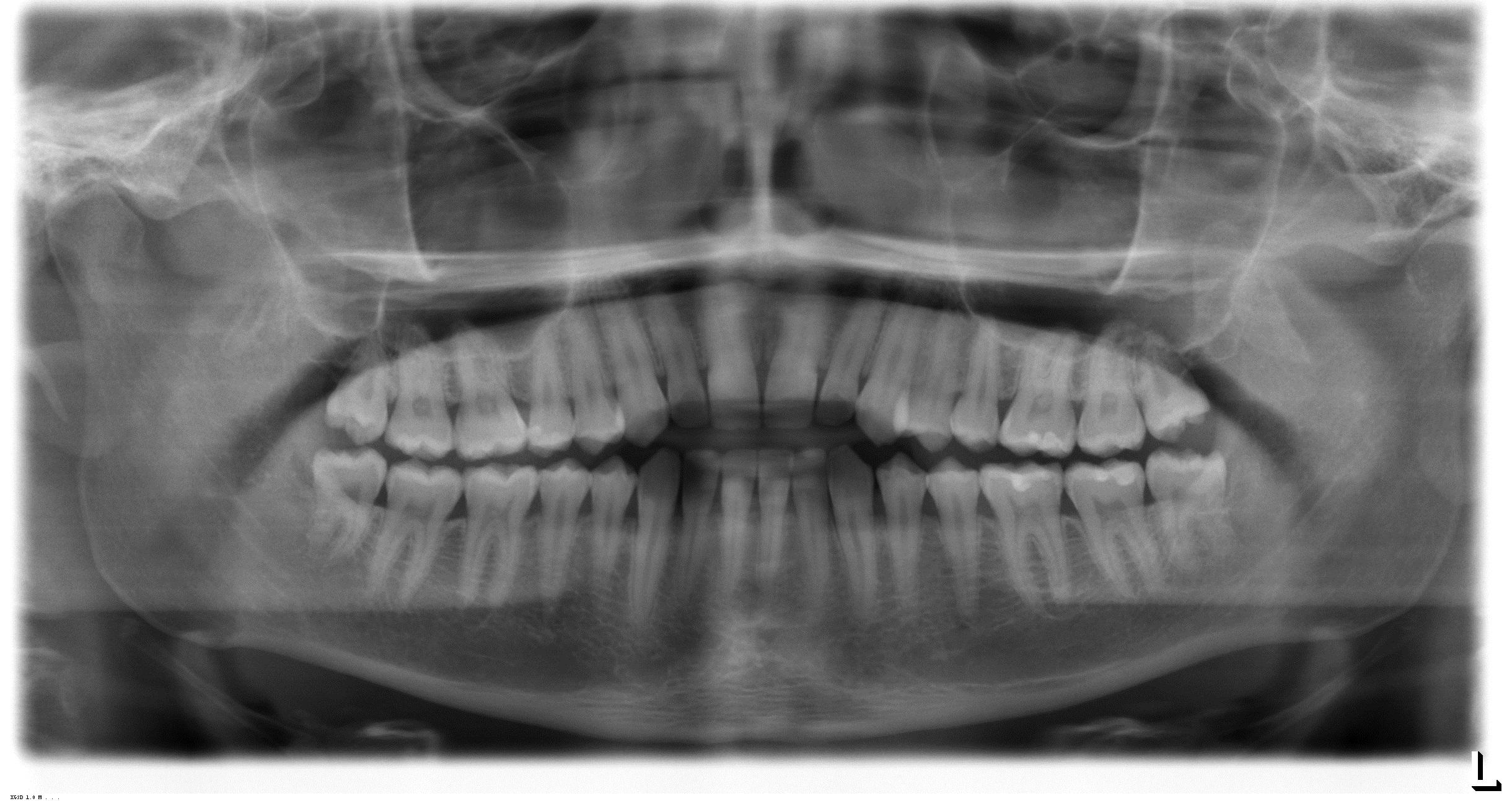 Il mio dentista mi ha detto che tutti i 4 denti del giudizio sono da estrarre