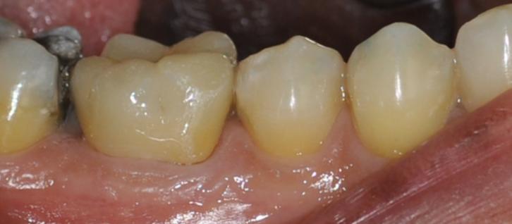 Corona ceramica integrale molare inferiore Dott. F. Fusaro