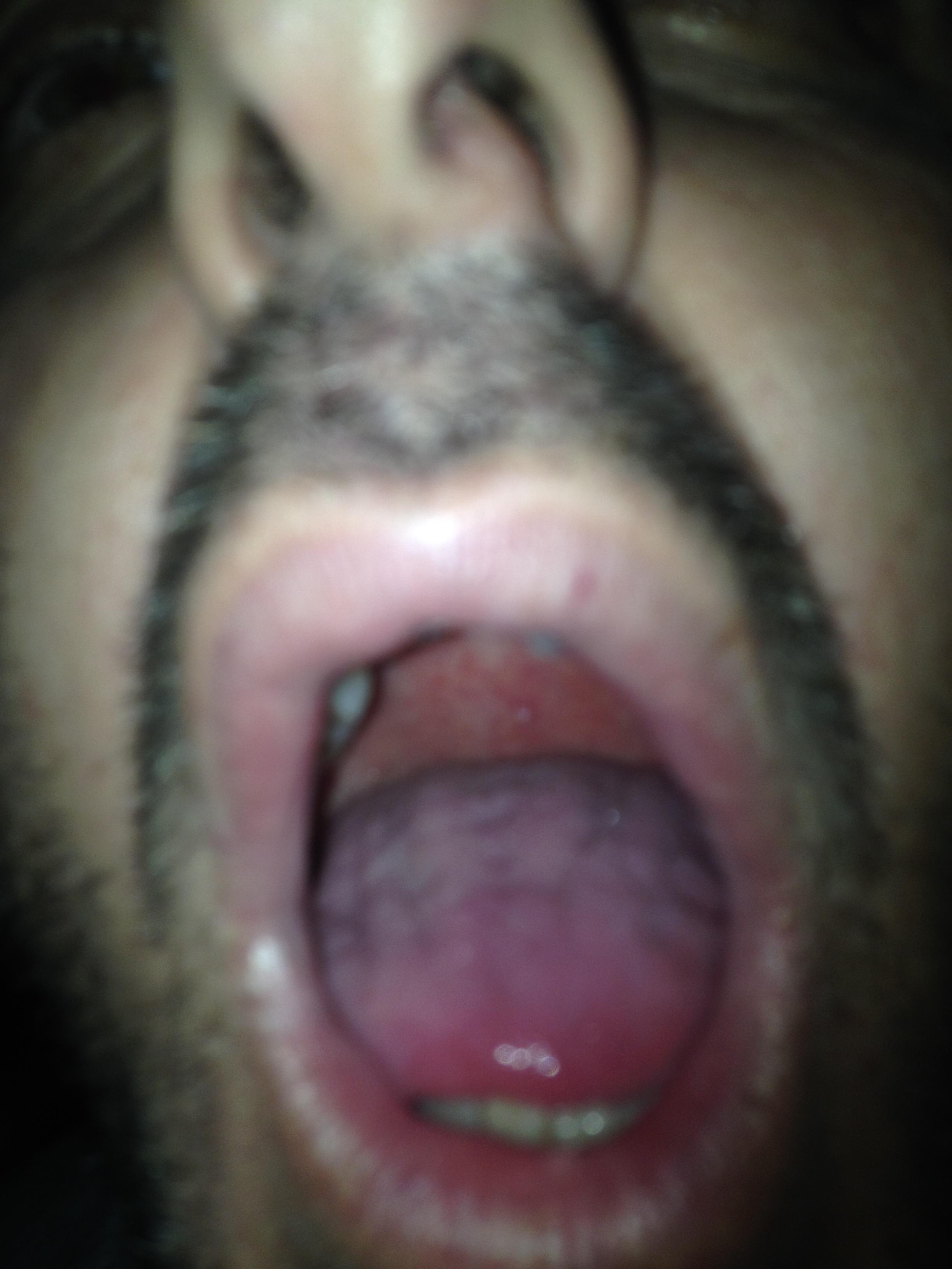 Pallina bianca sul palato. Cosa può essere?