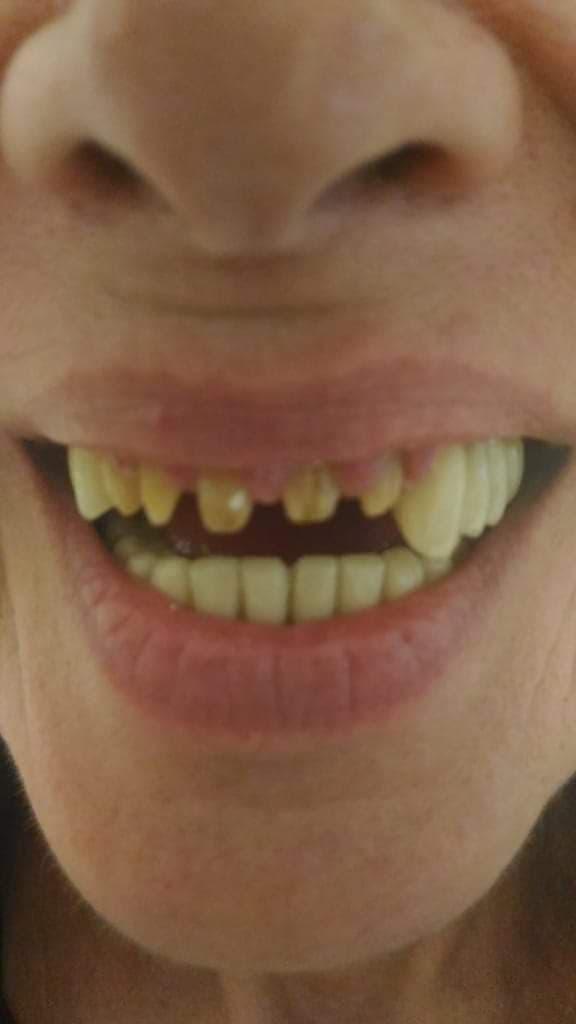 Tempo fa ho fatto ho fatto ristrutturazione completa della bocca