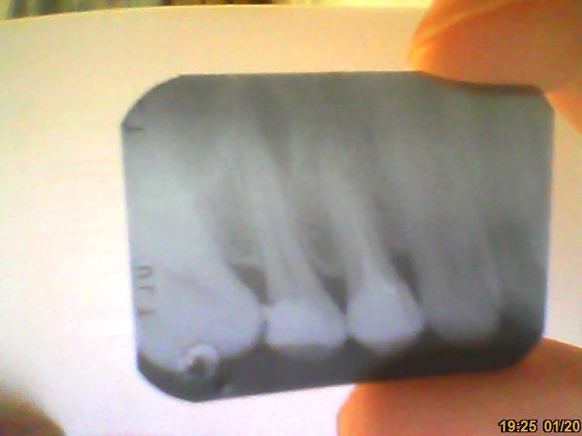 Ho un granuloma con fistola gengivale sul dente 25.