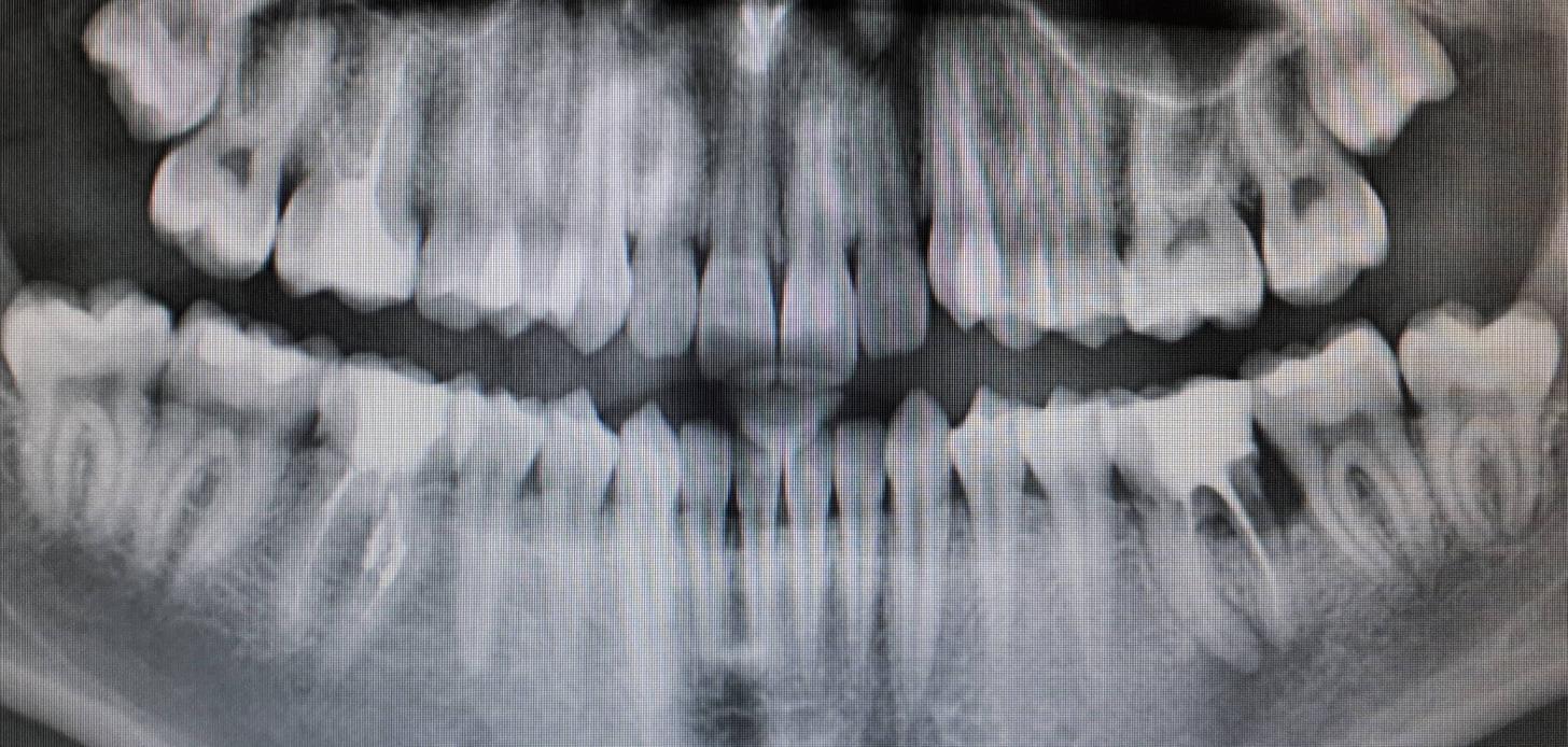 Perché non ha usato il dentalscan per l'inserimento dell'impianto?