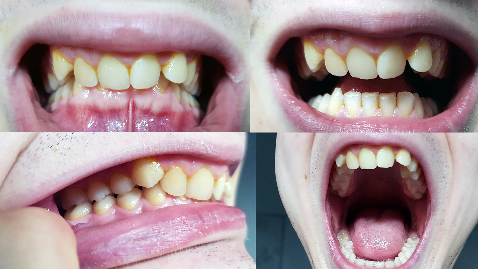 Da un anno soffro di disturbi cranio mandibolari molto fastidiosi