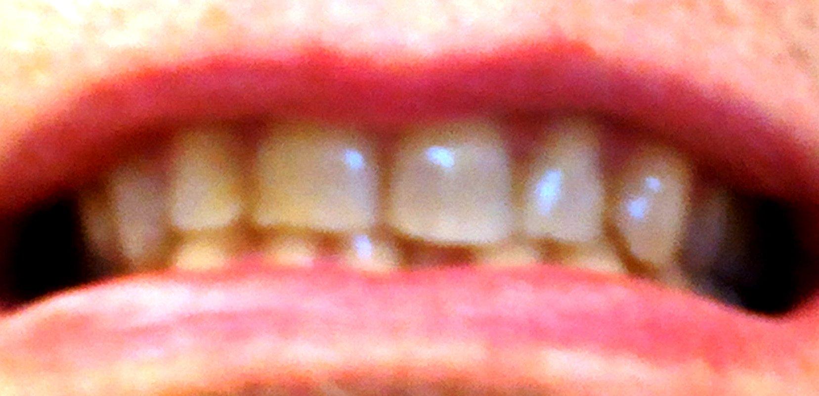 Dopo l'applicazione di una corona ad un molare ho una serie di problemi