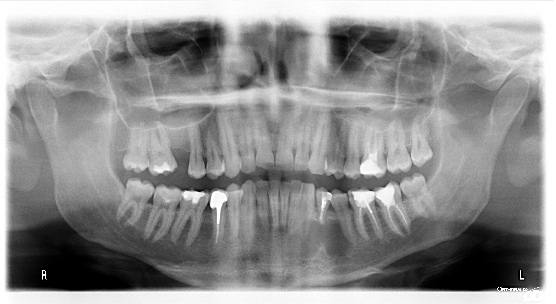 Devo davvero devitalizzare tutti questi denti?
