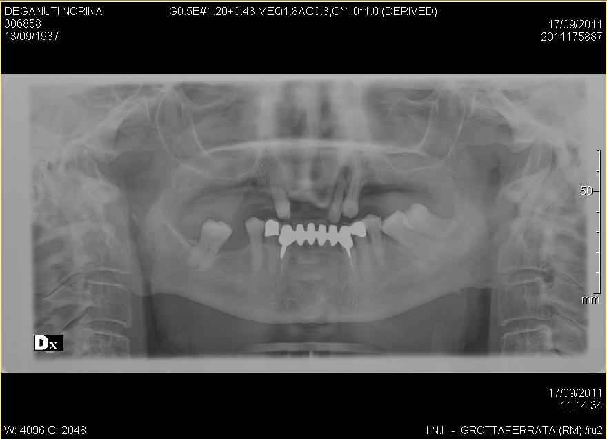 SEGUITO ALLA DOMANDA: Possibile che non si possa capire se il dente è guasto senza bucare la protesi ?