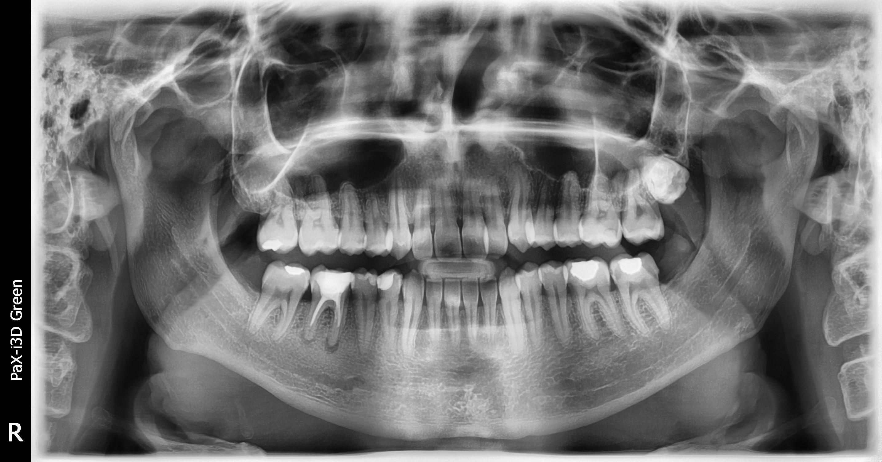 Mi è stata diagnosticata una carie al dente 15