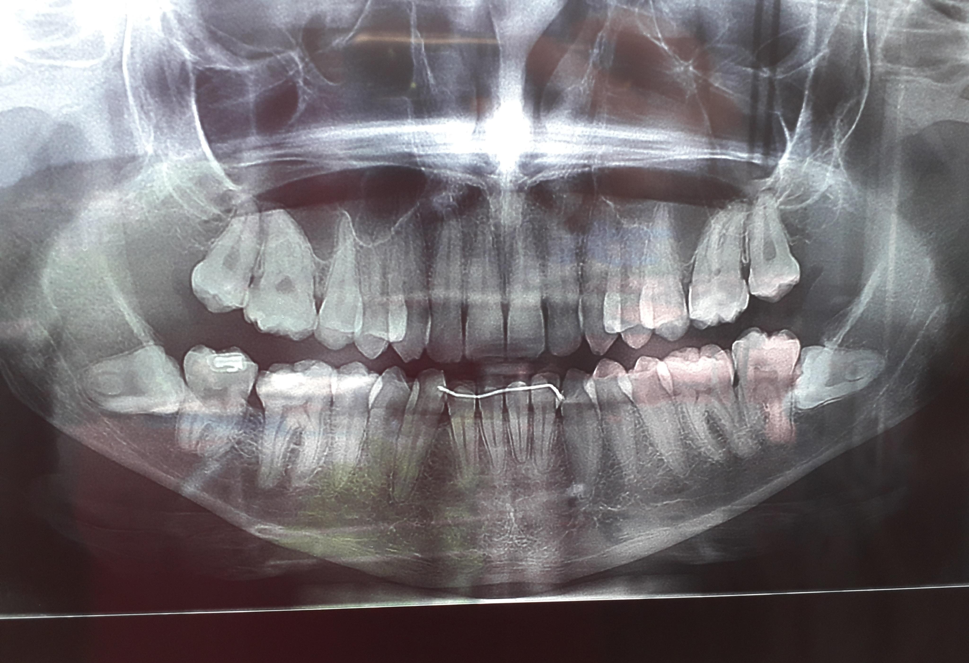 Sono anni che combatto con i denti del giudizio