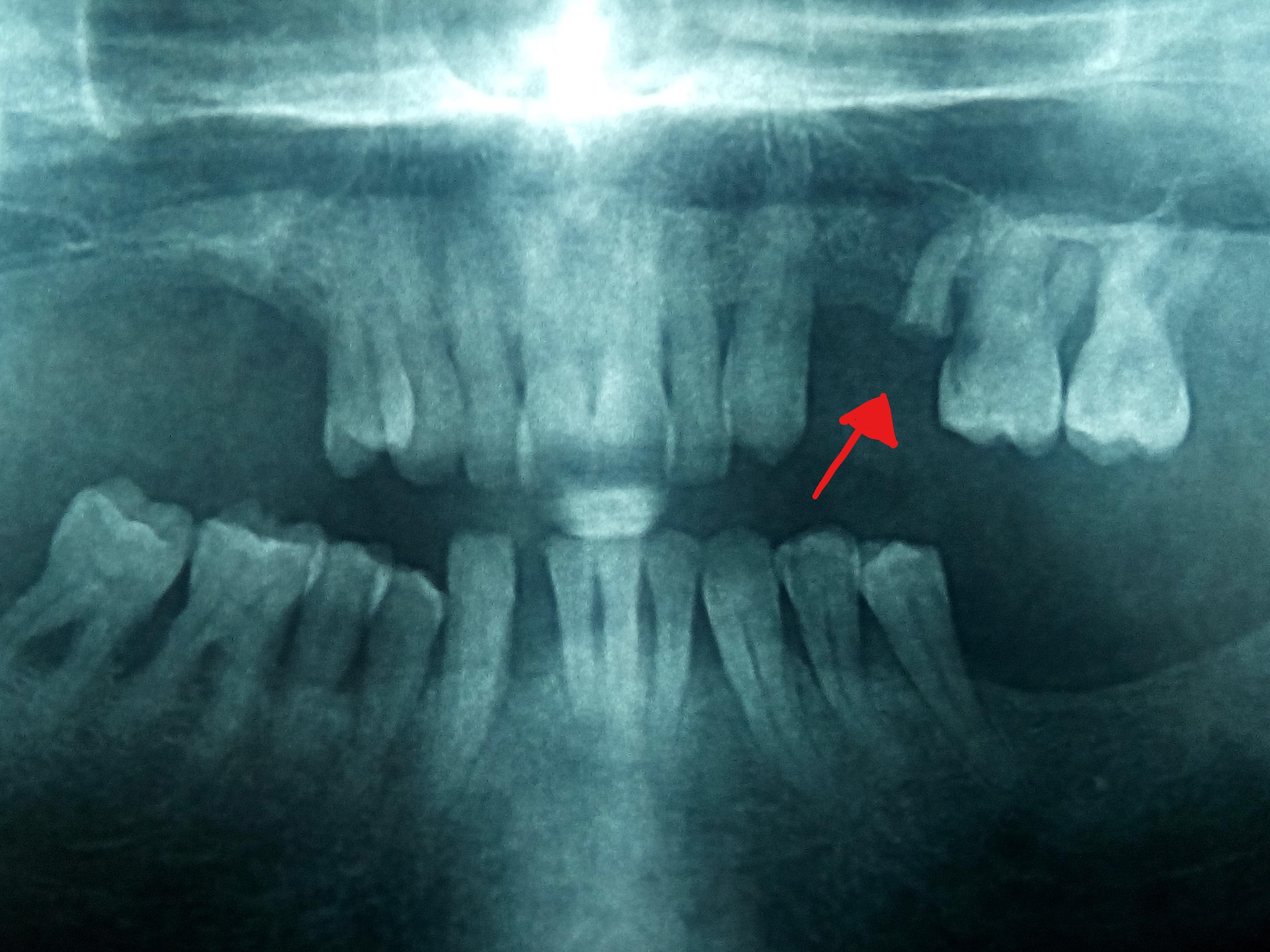 ortopanoramica-123.jpg