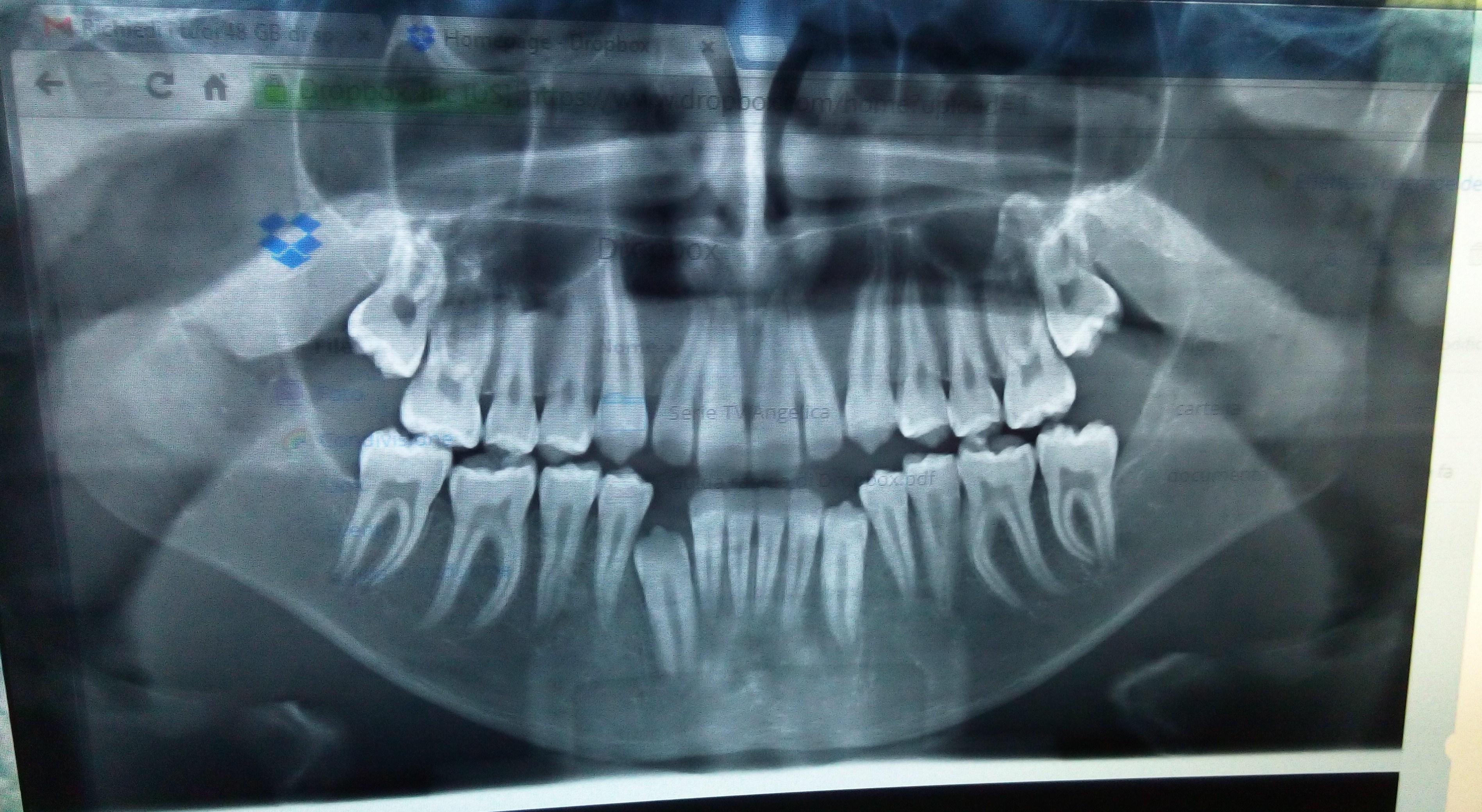Mio figlio di quasi 14 anni è in cura da 3 anni e mezzo circa da un ortodontista