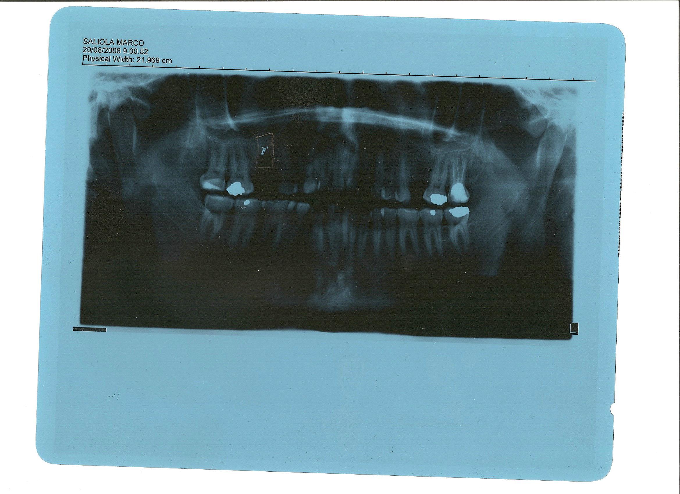 Seguito domanda del 28/09/2008: Problemi dopo la cura di una fistola