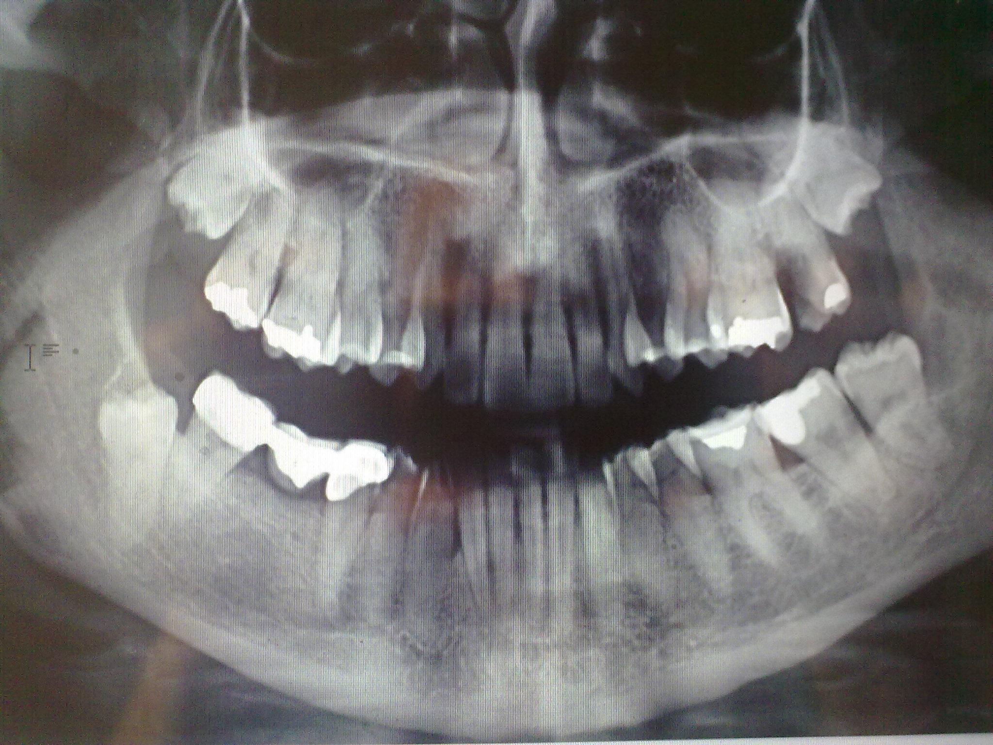 SEGUITO ALLA DOMANDA: Se tolgo solo il molare e aspetto che scenda il dente del giudizio, cosa può accadere?