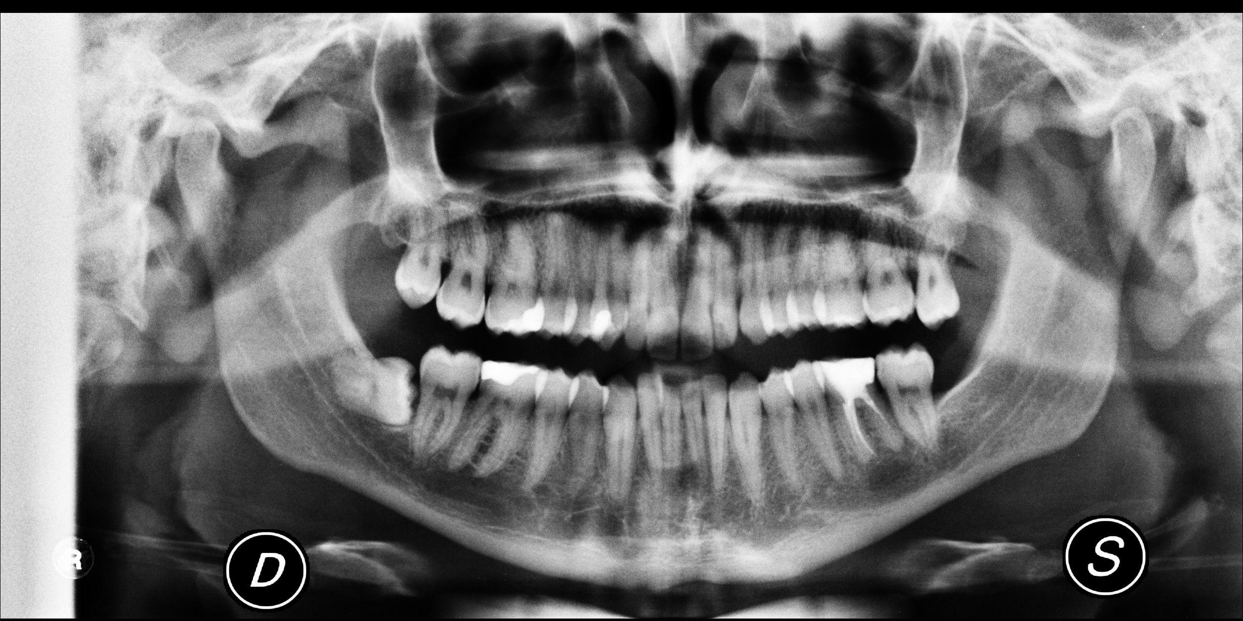 SEGUITO ALLA DOMANDA: Acufeni. Può dipendere dal dente del giudizio?