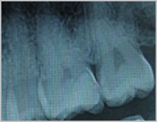 Ho un dente otturato da circa un anno e mezzo...