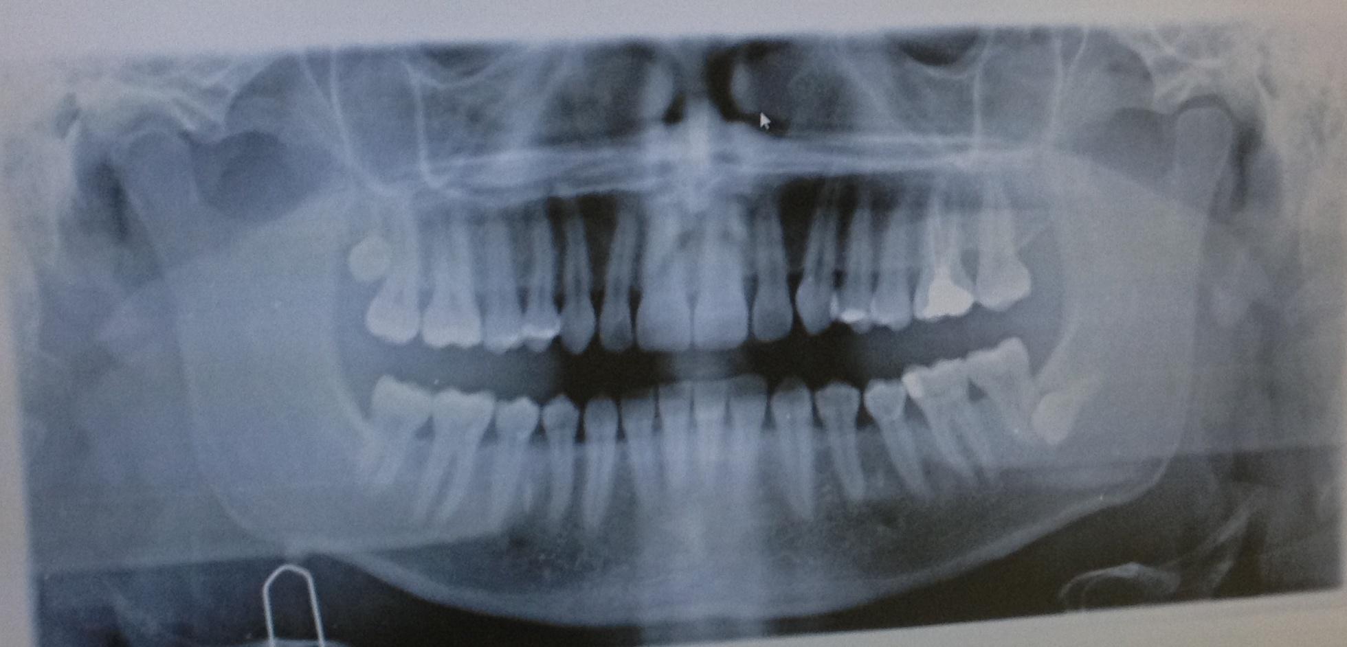 Ho un dente del giudizio inferiore totalmente incluso che impatta con la radice del settimo