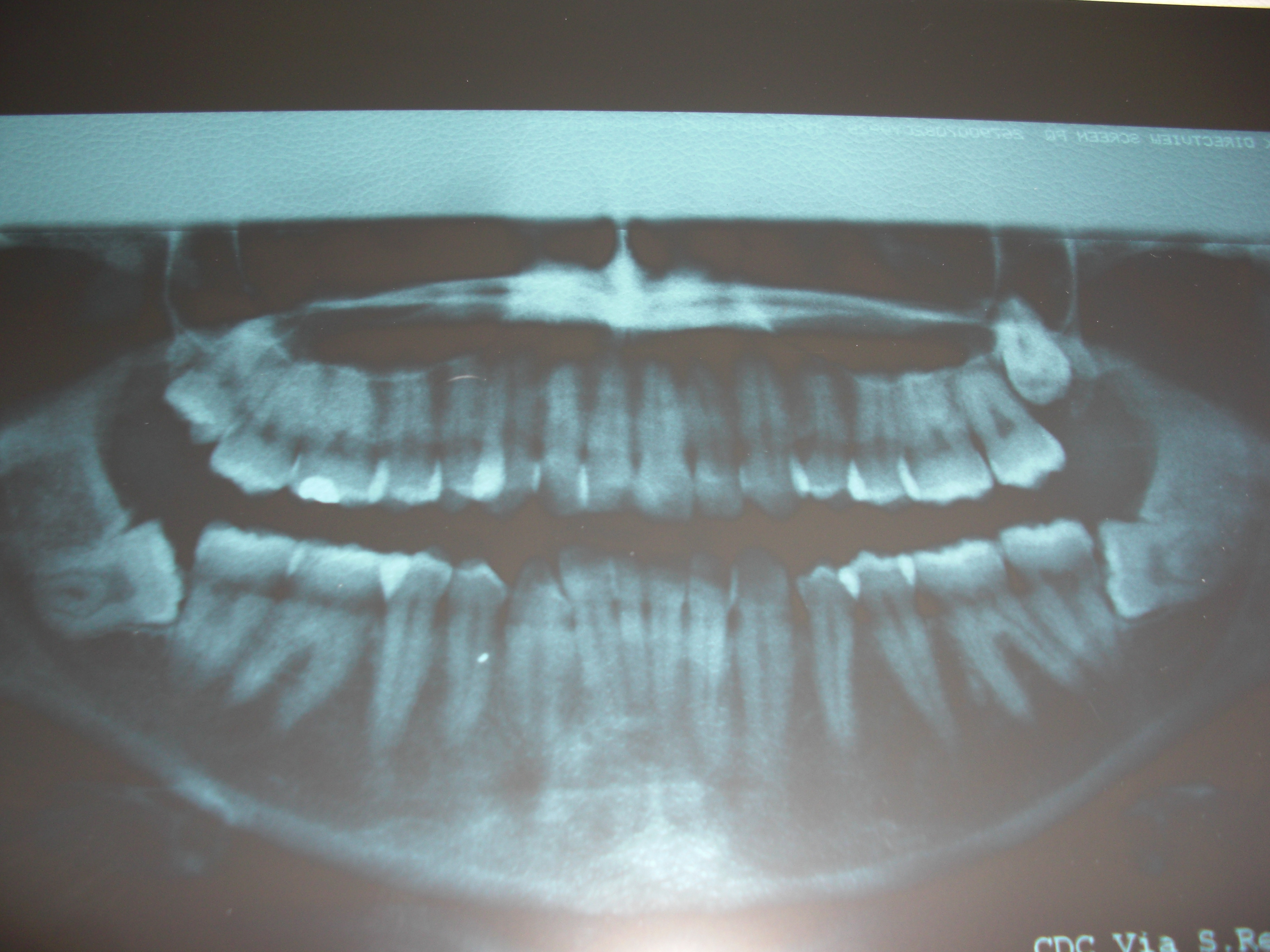 Mi è stato consigliato di togliere tutti e quattro i denti del giudizio