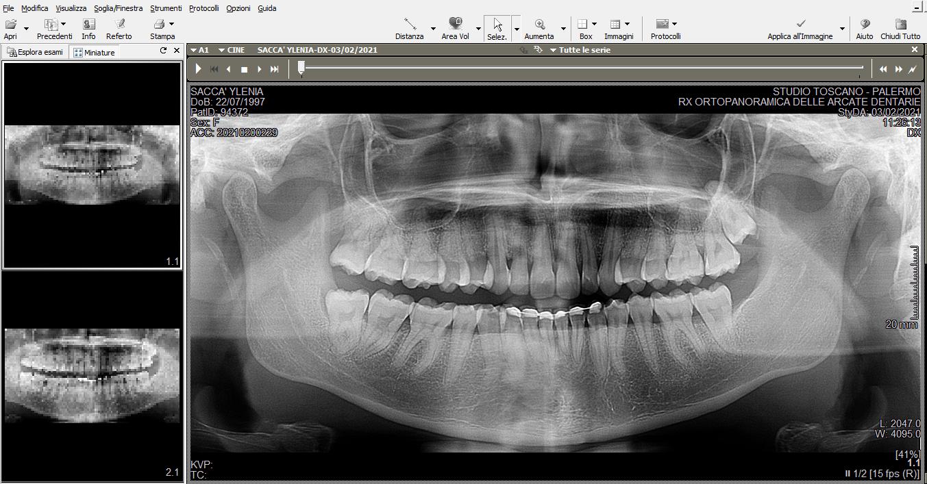 Ho iniziato ad accusare un dolore fortissimo al molare
