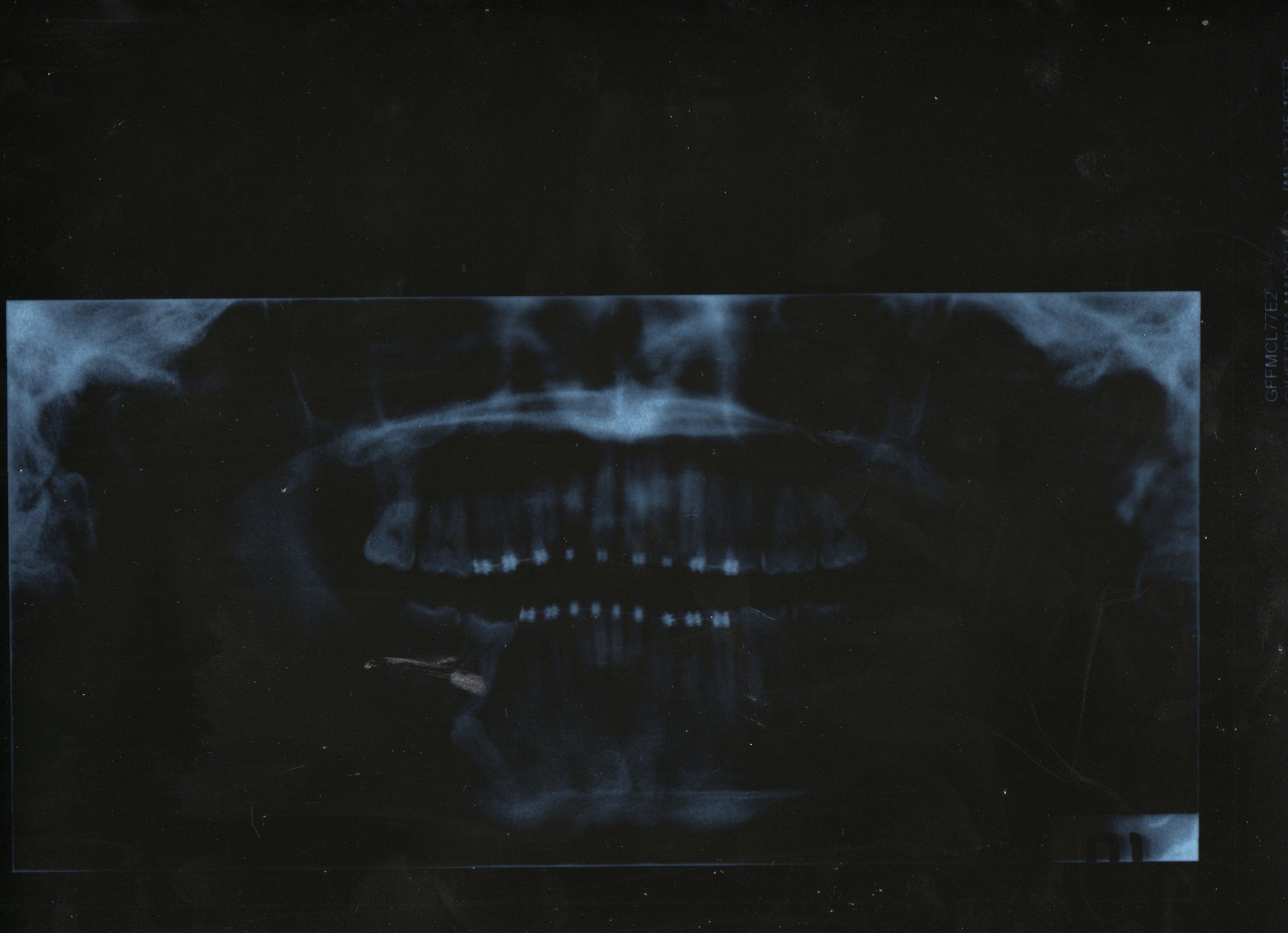 Dopo una panoramica mi sono accorto di avere il 5 dx in disodontiasi incluso con sopra dente da latte anch'esso incluso