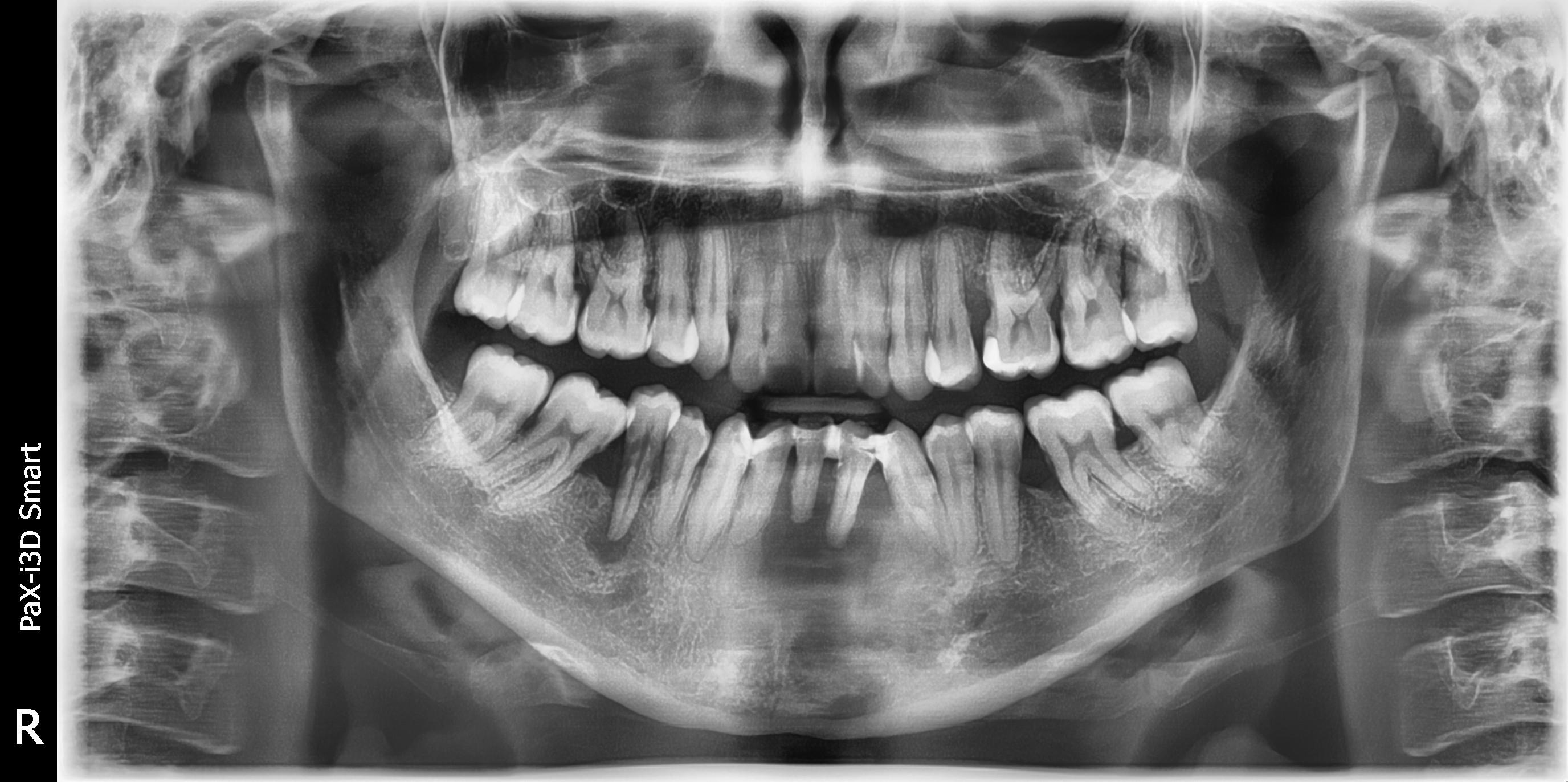 Ho 25 anni e mi è stata diagnosticata parodontite di tipo medio grave