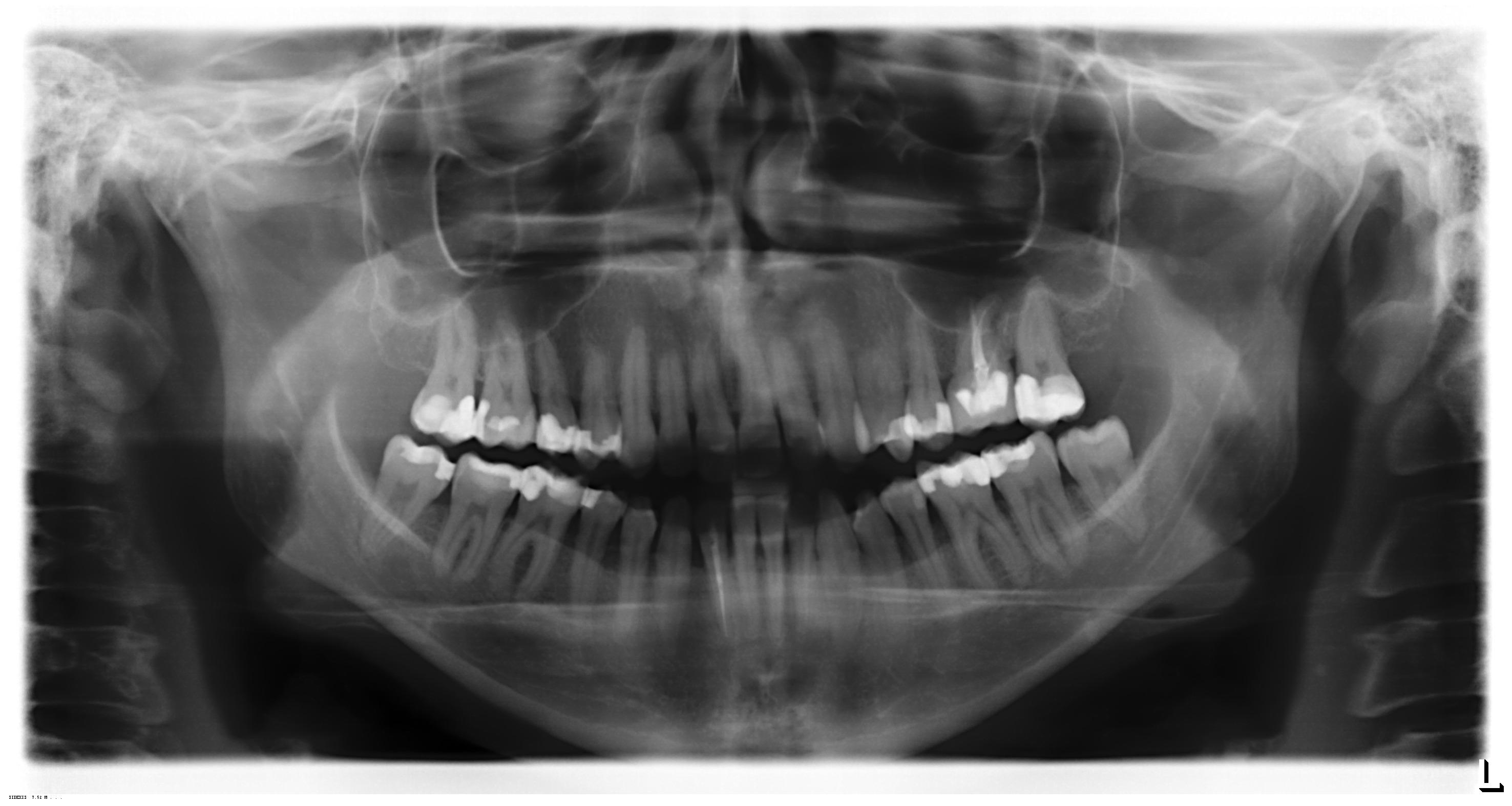 Un mese fa ho subito l'estrazione del dente del giudizio inferiore